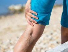 варикозные ноги