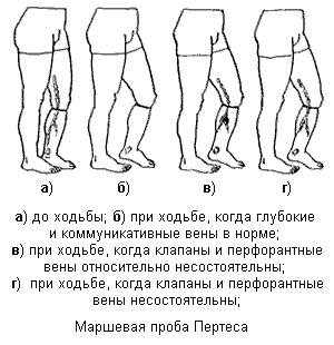 Проба Дельбе-Пертеса