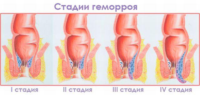 Геморрой у подростков причины лечение